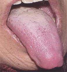 о чем говорит гнилостный запах изо рта